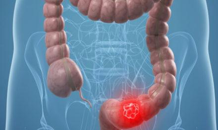 Η διατροφή που αυξάνει τον κίνδυνο για Καρκίνο του παχέος εντέρου