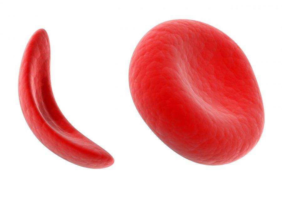 Σύνταξη σε άτομα με Δρεπανοκυτταρική Αναιμία