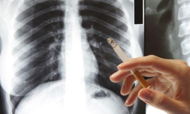 Ελληνική Πνευμονολογική Εταιρεία: Κρούει τον κώδωνα του κινδύνου για τον «σιωπηλό δολοφόνο», τη ΧΑΠ