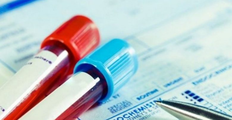 Η συνάντηση εργαστηριακών γιατρών και διαγνωστικών κέντρων κρίνει το μέλλον των κινητοποιήσεων