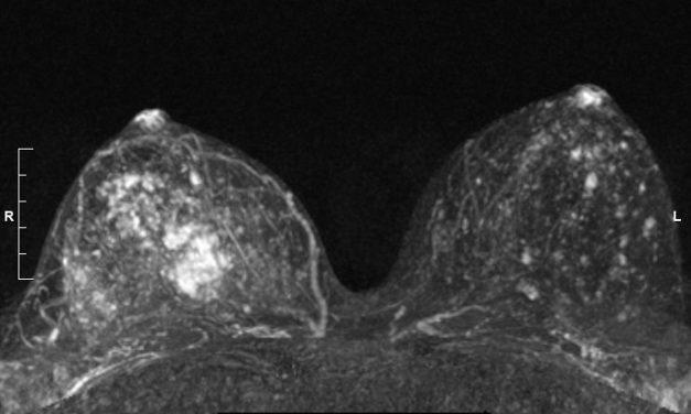 Οι μαγνητικές τομογραφίες μπορούν να ανιχνεύσουν καρκίνους του πυκνού μαστού που χάνουν οι μαστογραφίες