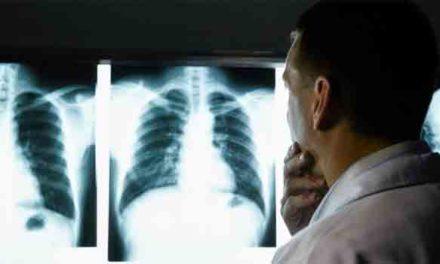 Σύστημα τεχνητής νοημοσύνης της Google ερμηνεύει τις ακτινογραφίες των πνευμόνων εξίσου καλά με ακτινολόγους