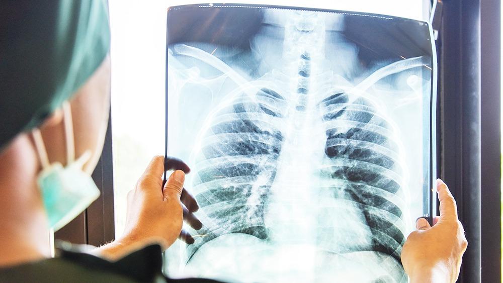 Οι ασθενείς που δεν νοσηλεύθηκαν λόγω της COVID-19 αντιμετωπίζουν μικρό κίνδυνο εμφάνισης σοβαρών προβλημάτων από την ασθένεια