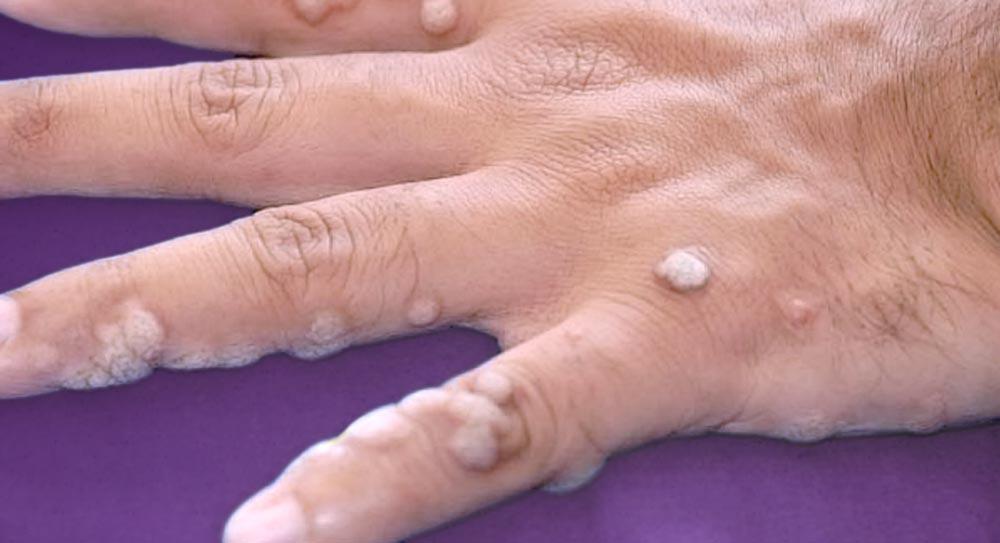 Μυρμηγκιές: Γιατί δεν πρέπει να καθυστερεί η θεραπεία τους